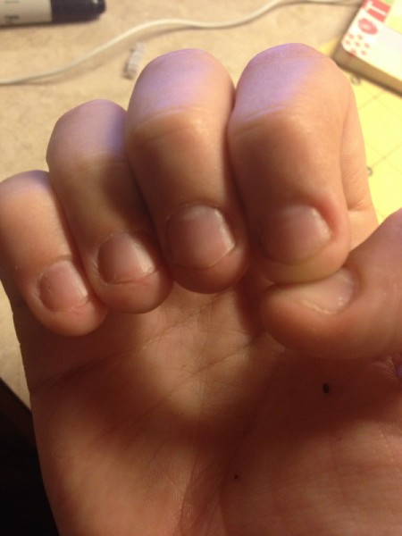 Remedies For Weak And Thin Fingernails