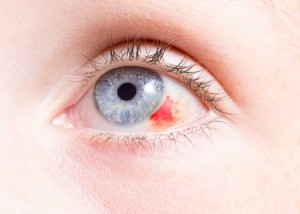 A blue eye with a red injury.