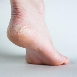 dry heel on foot