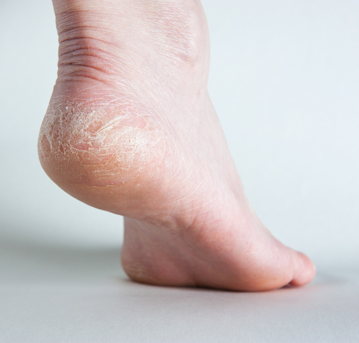 Home Remedies for Dry or Cracked Feet | ThriftyFun