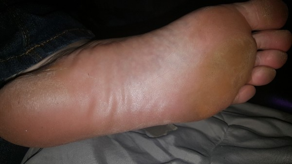 How To Get Rid Of Rough Feet Naturally