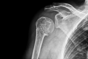 Dealing with A Broken Shoulder
