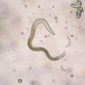 Image of a nematode shown under microscope