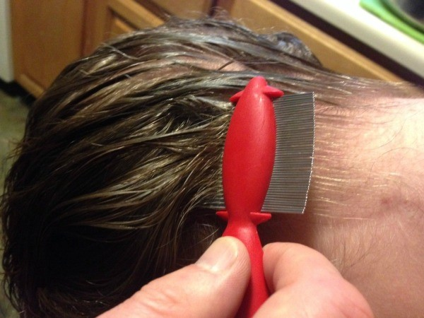 Natural Remedies For Lice Infestation