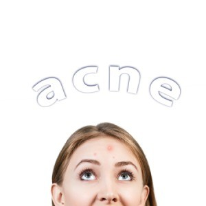 Upper half of a woman's face with the word acne written above it