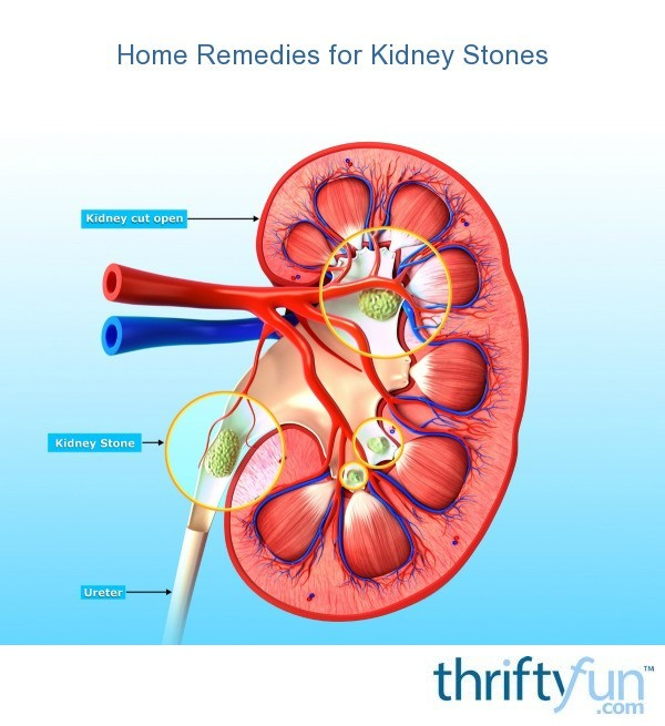 Home Remedies For Kidney Stones Thriftyfun
