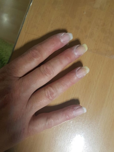 Nails Yellowing on Tips