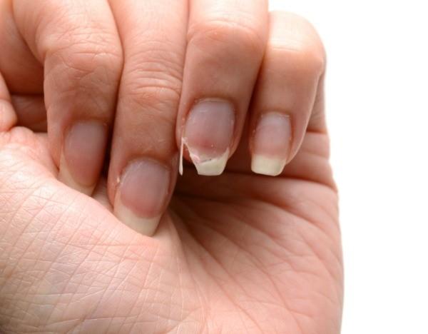 remedies for splitting fingernails thriftyfun