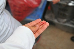 A hand stained with red food coloring