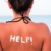 A woman with a sunburned back.