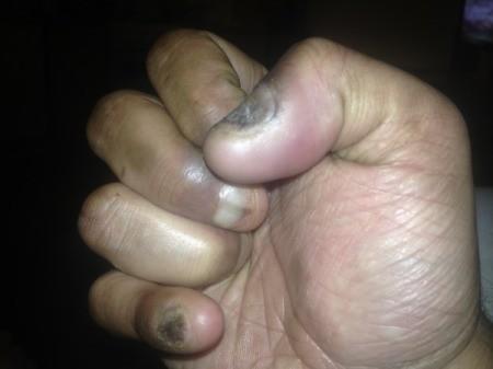 Stopping Nail Biting