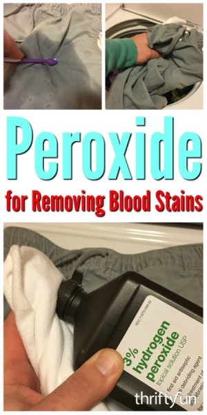 Peroxide for Removing Blood Stains