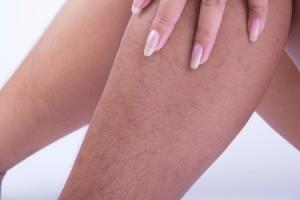 A woman's hairy legs.