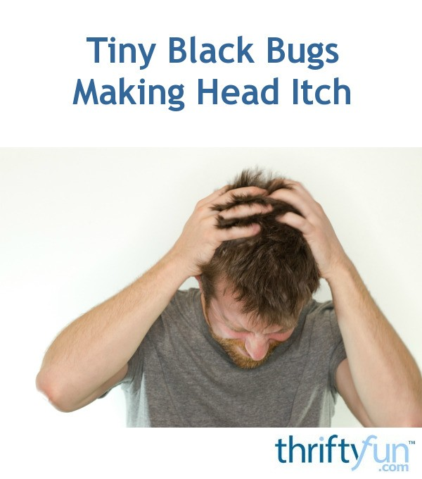 Tiny Black Bugs Making Head Itch | ThriftyFun