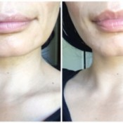 Homemade Plumping Lip Exfoliator - before and after photo