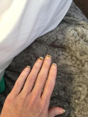 Powder Nails Aftermath