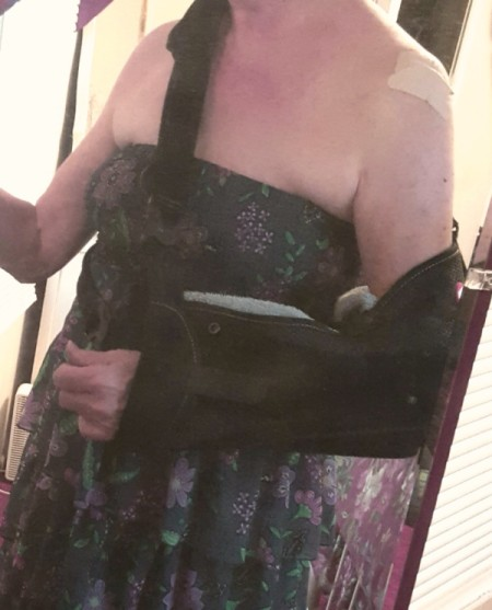 A woman wearing a sleeveless sun dress with her arm in a sling.