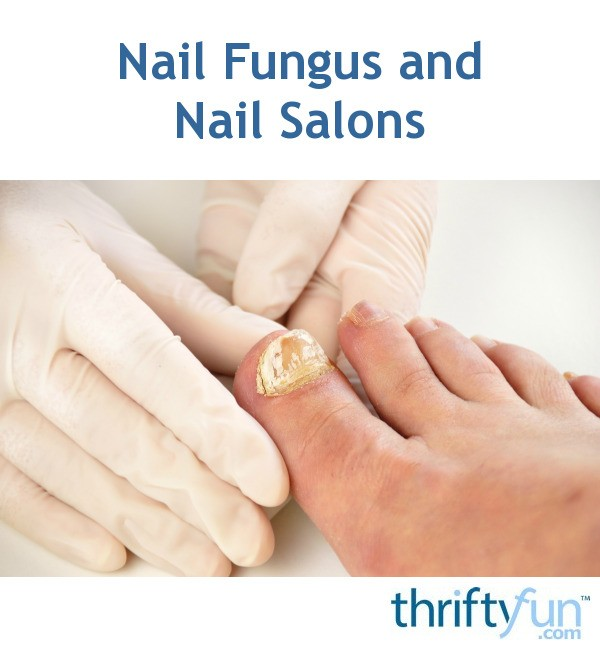 Nail Fungus and Nail Salons | ThriftyFun