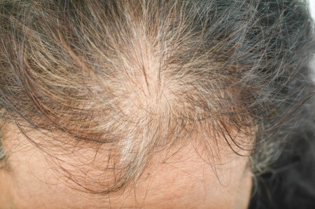 Woman With Thinning Hair