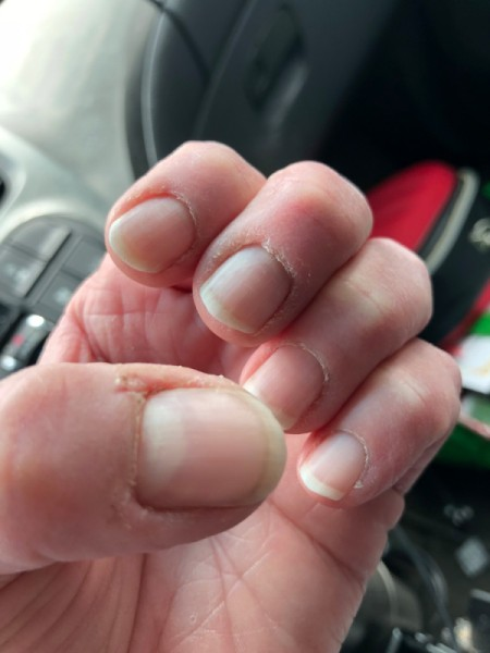 DIY Manicure - nails before