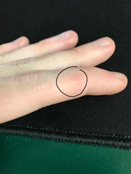 Itchy Bug Bites on My Fingers