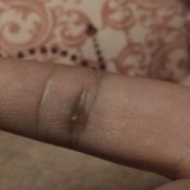Identifying a Pimple-like Sore on Finger