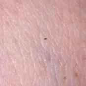 Getting Rid of Small Black Biting Bugs  - bug on skin