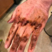A hand covered in sticky roof tar from construction.