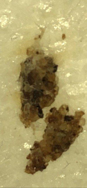 Larvae Identification - larvae
