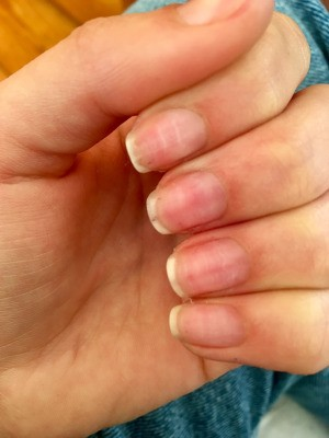 Throbbing Pain after GEL Nail Removal - closeup of left hand nails