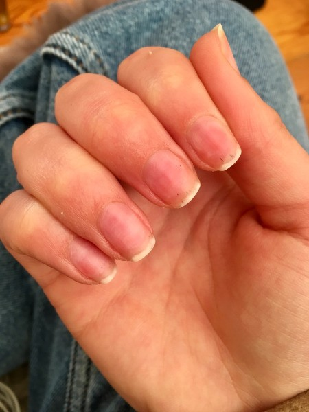 Throbbing Pain after GEL Nail Removal - right hand