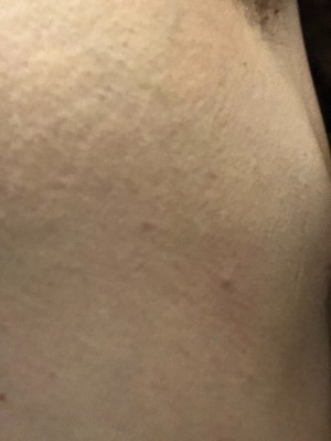 Cause of Tiny Red Itchy Spots - closeup of spot in skin