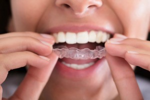 A woman placing a retainer in her mouth.
