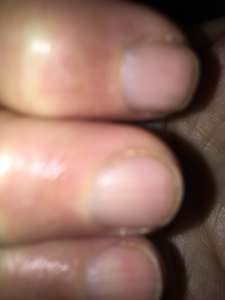 Remedy for Brittle Splitting Nails - closeup of nails