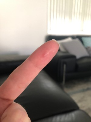 Identifying a Painful Bump on Finger Pad - pimple looking bump on index finger pad