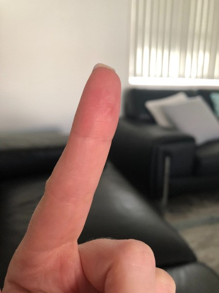 Identifying a Painful Bump on Finger Pad