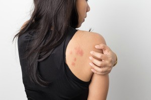 A woman with a rash on her arms and back.