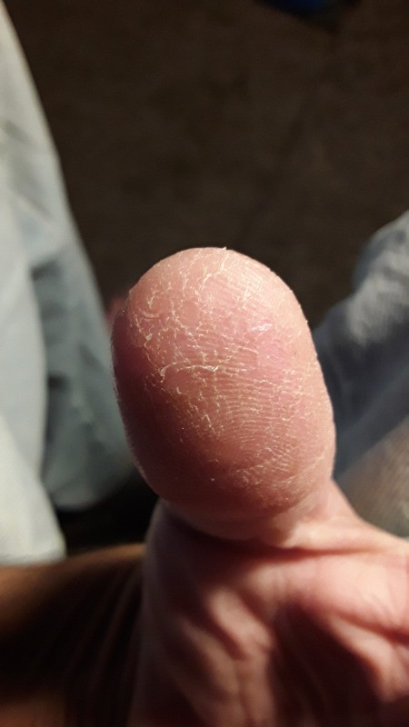 Identifying Bugs on Fingers from Digging in the Soil
