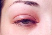 An eye infection.