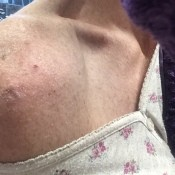 Getting Rid of Mice in the Dryer - bumps on shoulder
