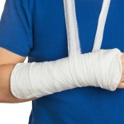 An arm in a white cast.