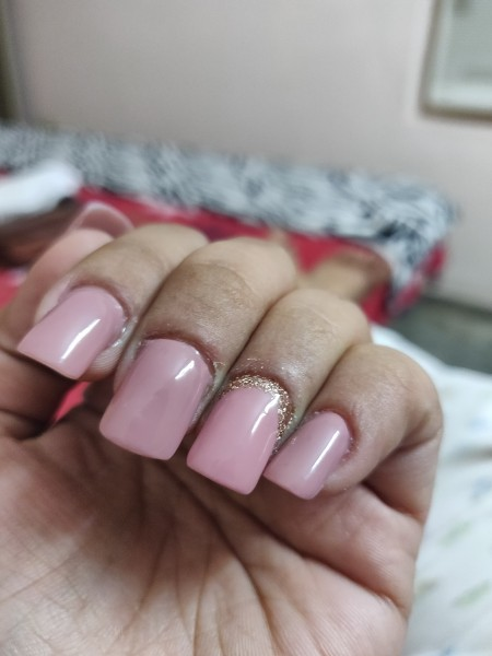 Remedy for Cuticles Damaged by Nail Biting - a person's hand showing nails and cuticles