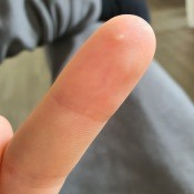 Identifying a Painful White Spot on My Finger - small white spot near the tip of a finger