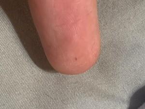 Identifying a Tiny Bug the Keeps Crawling on My Skin? - tiny black bug on finger tip