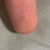 Identifying a Tiny Bug the Keeps Crawling on My Skin? - tiny black bug on finger tip