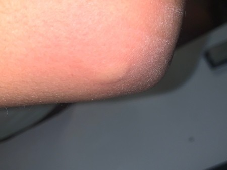 A bite mark from a mosquito.