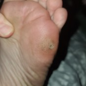 A sore or marking on the bottom of a foot.