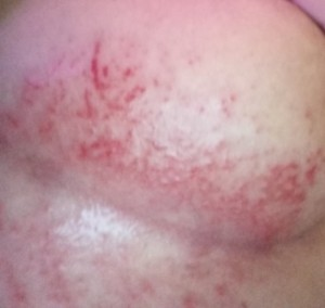A rash on a chest.