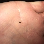 A small black bug on a hand.