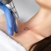 A woman receiving a laser treatment for removing her tattoo.